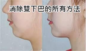 消除雙下巴方法